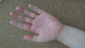 手荒れピーク時の手の画像