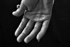 手汗と多汗症による手荒れの原因と改善・治療法を探りました